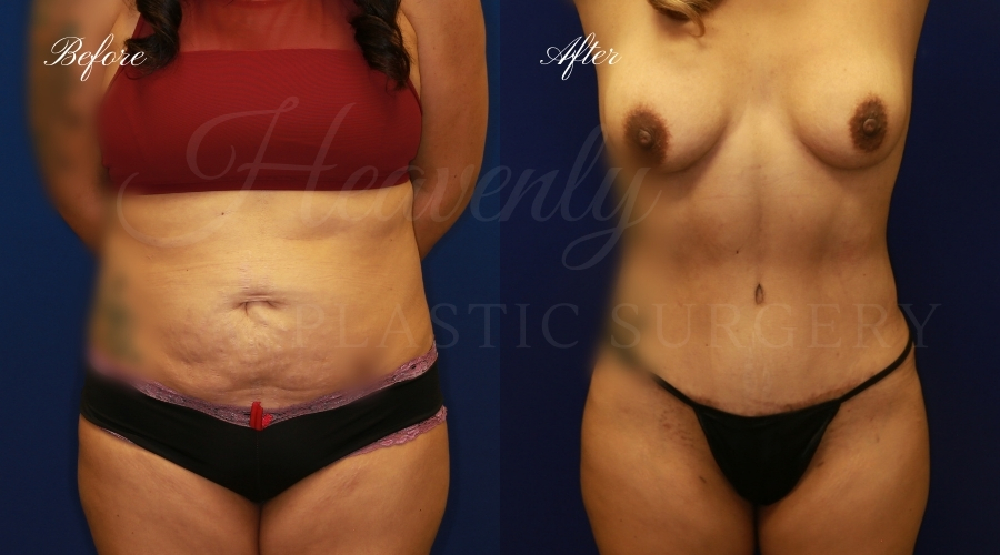 tummy tuck before and after, liposuction before and after, tummy tuck with liposuction, liposuction before and after, tummy tuck orange county, liposuction orange county, lipoetching