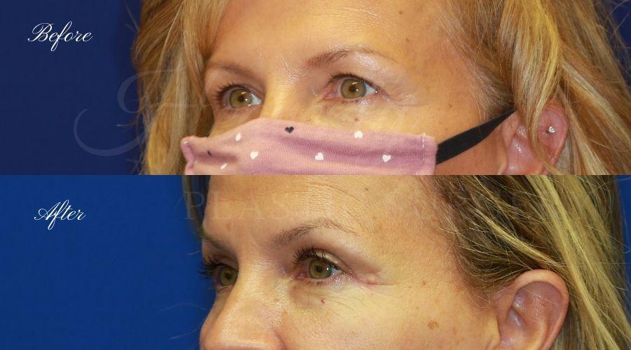 Plastic Surgery, Plastic Surgeon, Eyelid Surgery, Upper blepharoplasty, blepharoplasty, upper eyelids, upper eyelid surgery