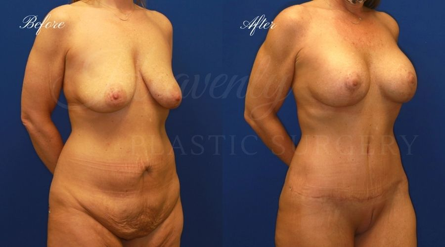 Heavenly Plastic Surgery, Plastic Surgery, Plastic Surgeon, Mommy Makeover, Transformation, Breast Lift, Tummy Tuck, Breast lift without implants, Breast Surgery, Body Surgery, Tummy Tuck, Tummy Tuck with Liposuction, Liposuction