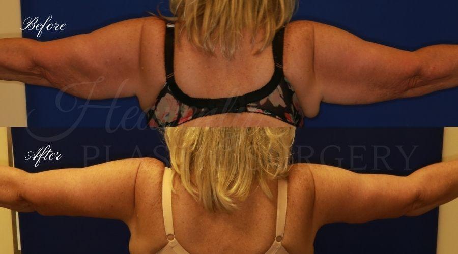Mommy Makeover - Arm Lift + Tummy Tuck - Back LEGI