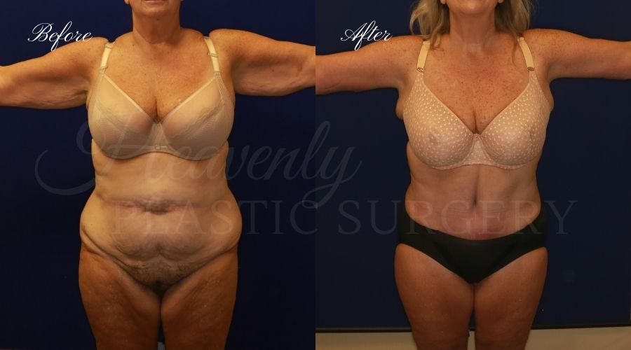 mommy makeover before and after, tummy tuck before and after, arm lift before and after, mommy makeover surgeon, arm lift surgeon, tummy tuck surgeon, arm lift orange county, tummy tuck orange county, brachioplasty orange county, brachioplasty surgery, brachioplasty surgeon