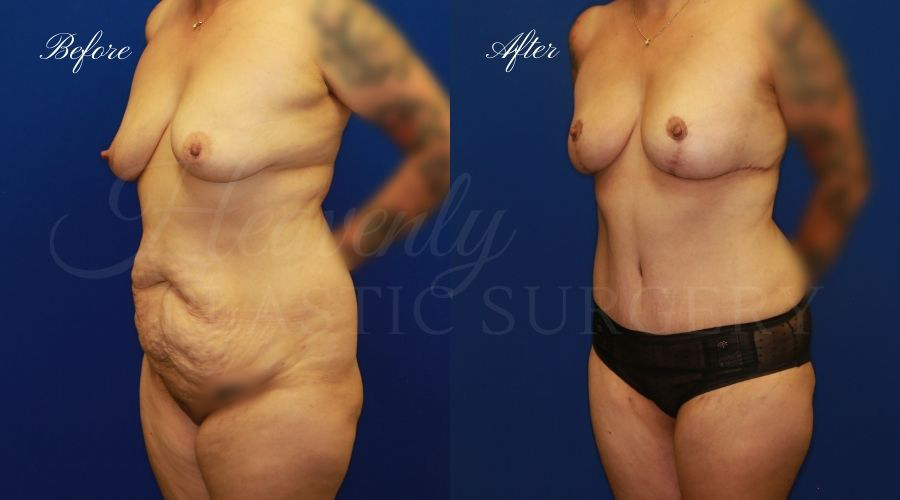 tummy tuck, tummy tuck before and after, breast lift before and after, breast lift results, tummy tuck breast lift surgeon, mommy makeover, mommy makeover before and after, mommy makeover surgeon, mommy makeover orange county, axillary breast tissue excision, accessory breast tissue removal, breast tissue removal, excess breast tissue removal