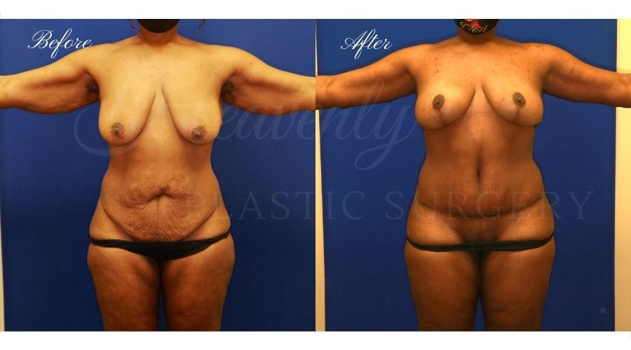 mommy makeover before and after, arm lift before and after, breast lift before and after, tummy tuck before and after, mommy makeover orange county, orange county plastic surgeon, mommy makeover surgeon, tummy tuck orange county, breast lift orange county, arm lift orange county, breast lift with no implants