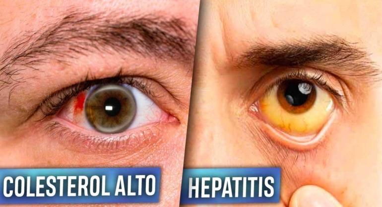 portada--6-enfermedades-que-tus-ojos-pueden-revelar