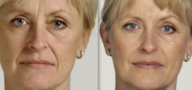 Cosmetic Fillers & Facial Rejuvenation
