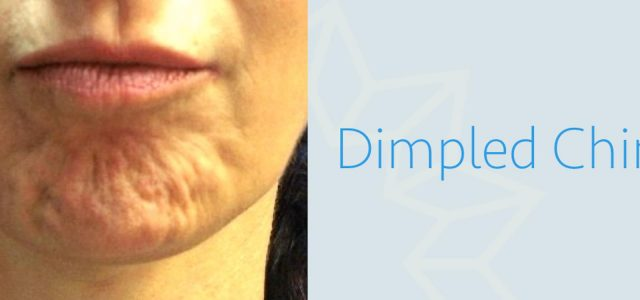 BOTOX FOR DIMPLED CHIN