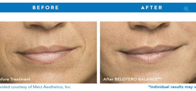 Cosmetic Filler Belotero