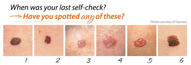 Skin Cancer Austin