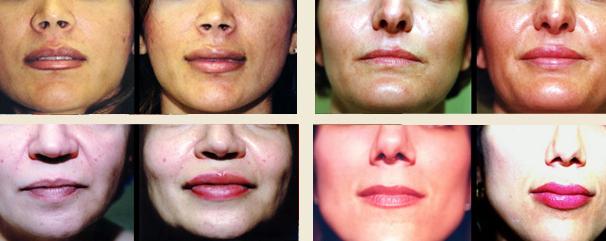Lip Injections Austin