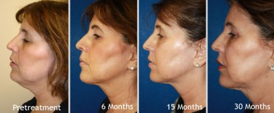 Aging neck