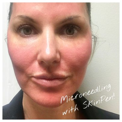 COLLAGEN INDUCTION THERAPY MICRONEEDLING