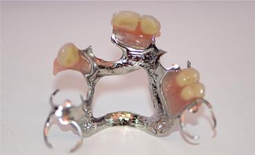 dentures-22