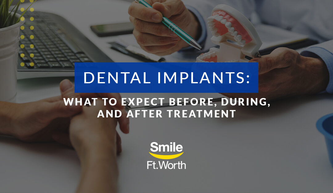 Dental Implants: What to Expect   Smile Fort Worth