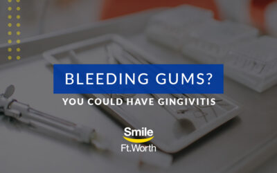 Bleeding Gums? You Could Have Gingivitis