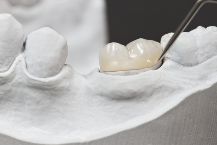 A dental crown is a cap for your tooth | Smile Fort Worth | Fort Worth dentists