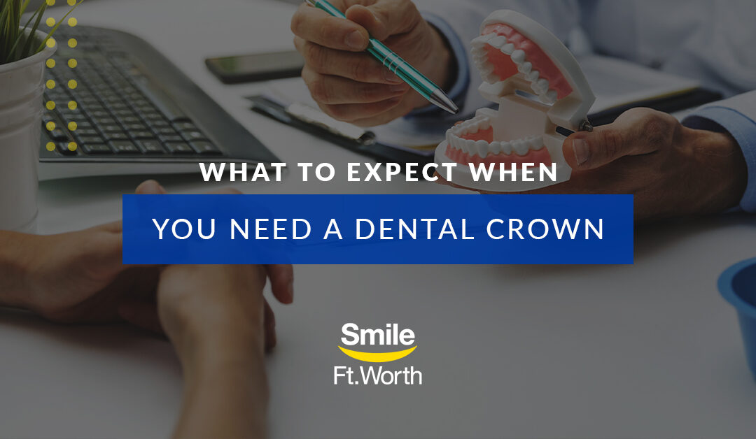 What to Expect When You Need a Dental Crown | Smile Fort Worth | Fort Worth Dentists