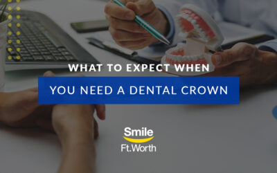 What to Expect When You Need a Dental Crown