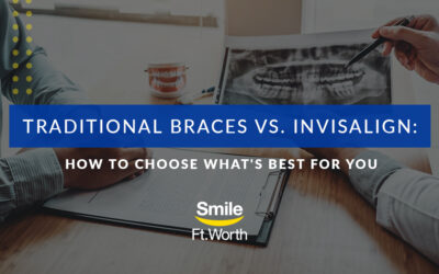 Traditional Braces vs. Invisalign: How to Choose What's Best For You