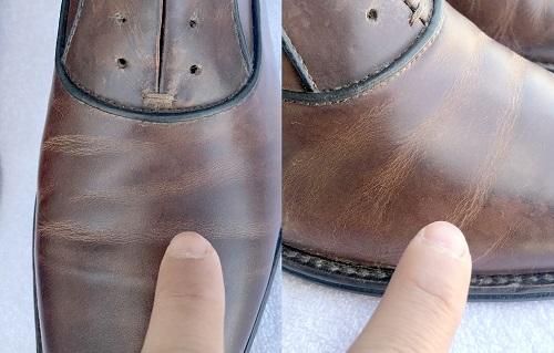 Shoe care problem areas