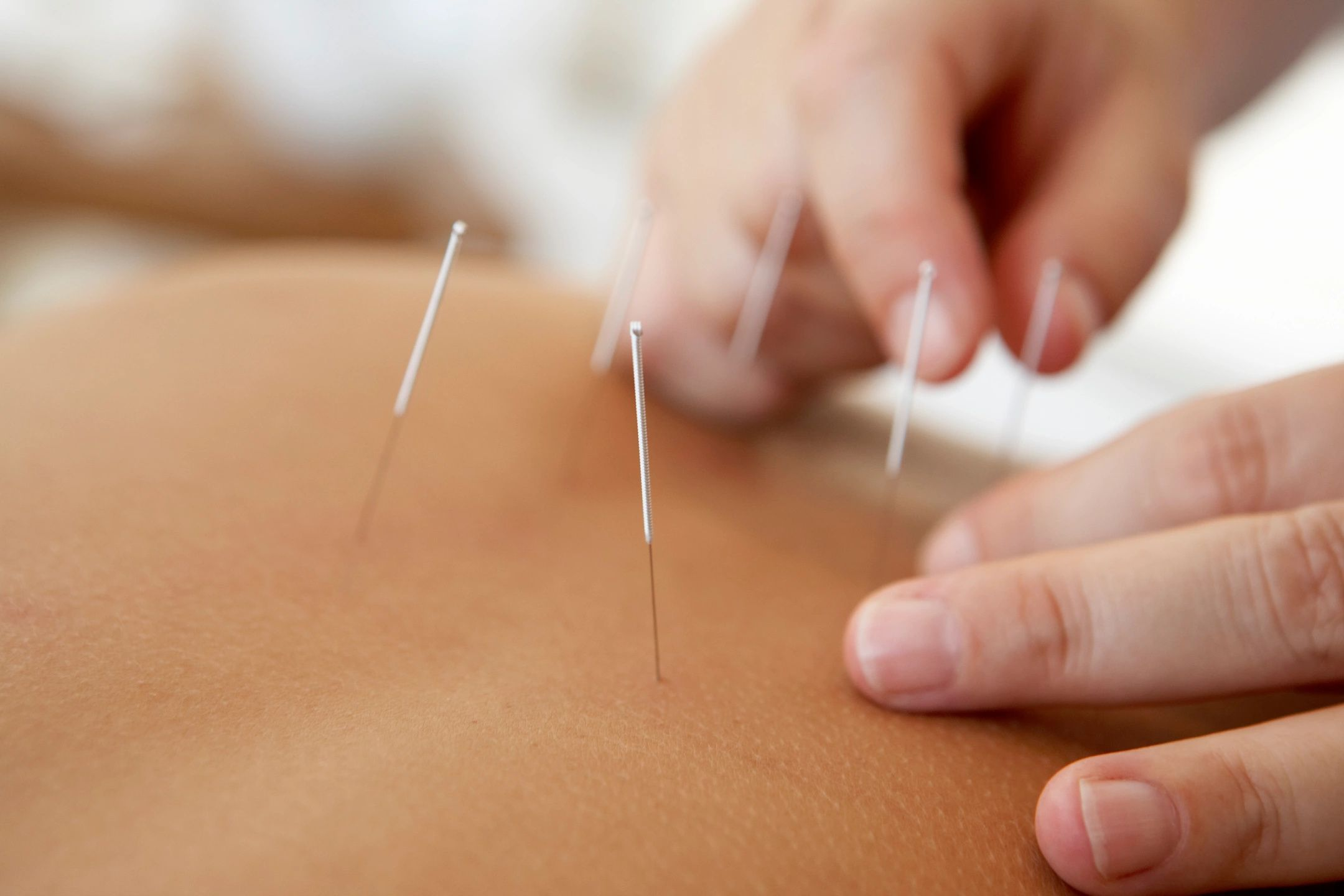 Latest Case Study - Acupuncture, Depression and Anxiety