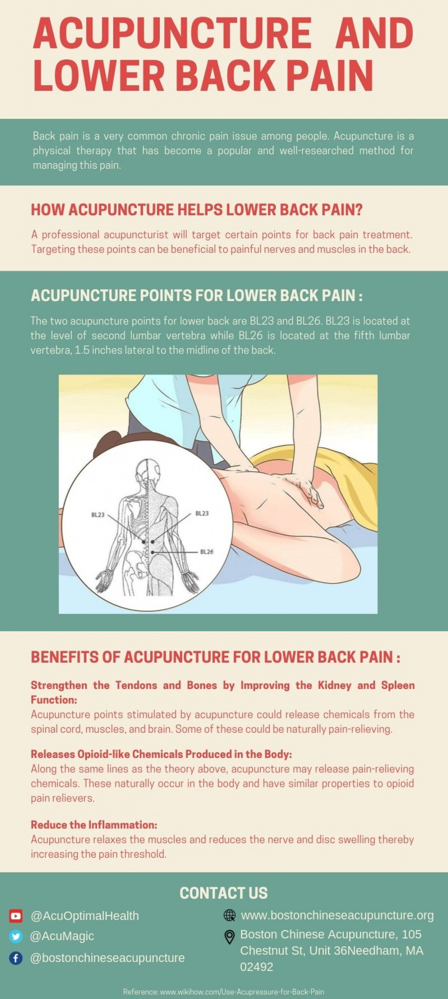 Acupuncture Points for Back Pain