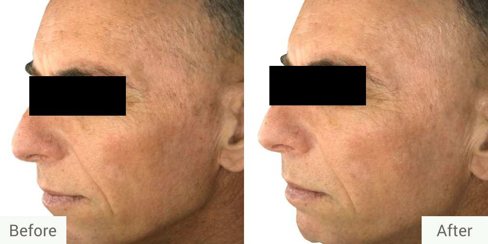 Photofacial-before-after2