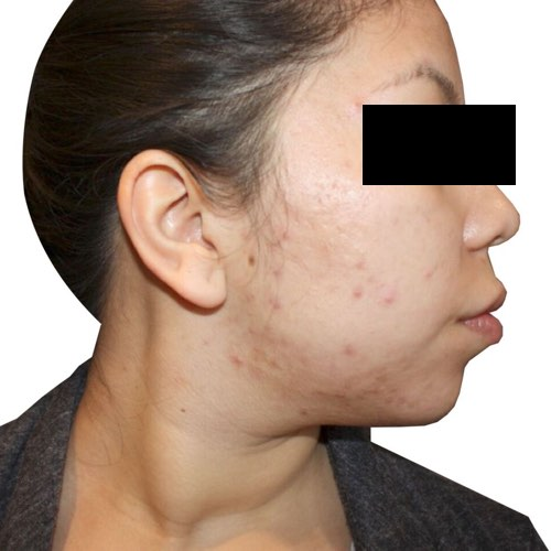 acne_1_before