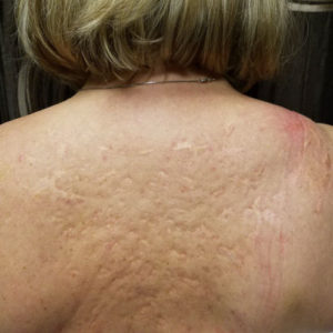 back-scars-before