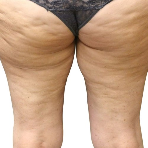 cellulite_2_before