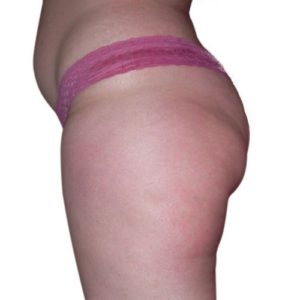cellulite_3_after