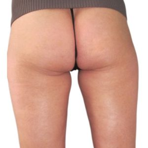 cellulite_4_after