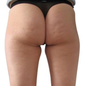 cellulite_4_before