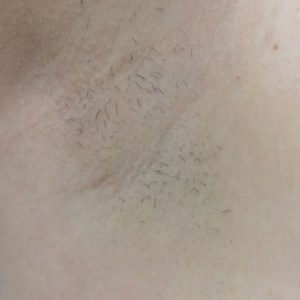 hair_removal_3_after