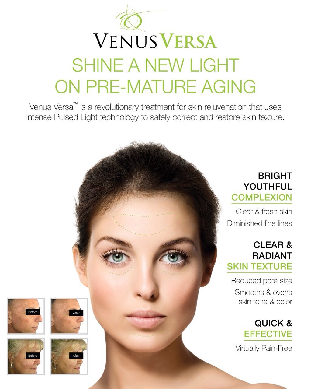 SHINE A NEW LIGHT ON PRE-MATURE AGING