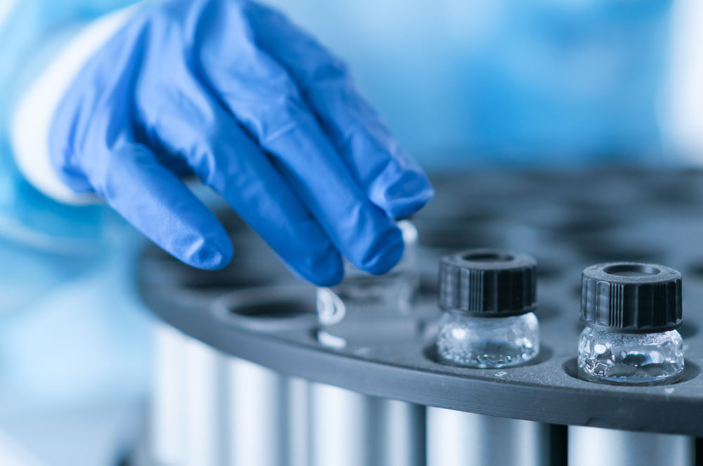 gloved lab technician's hand handling test tubes