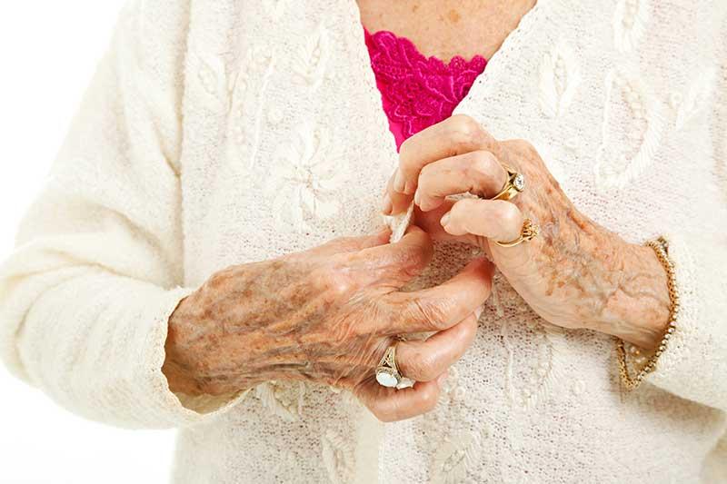 Senior lady buttoning shirt with arthritis