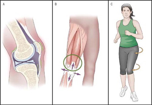 knee pain woman