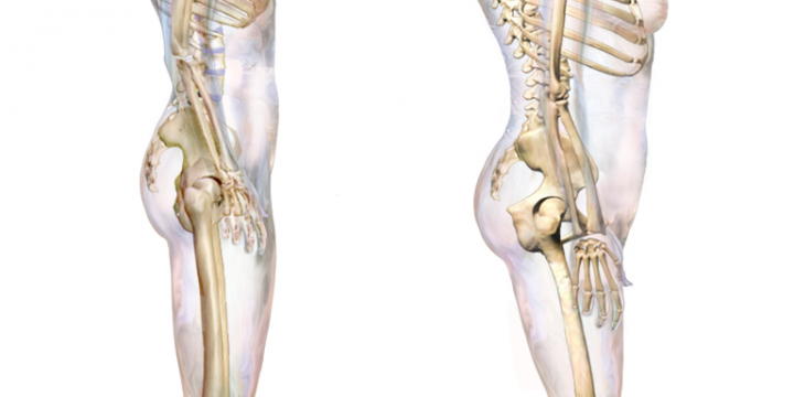 3 Treatment Videos For Your Hunchback Posture