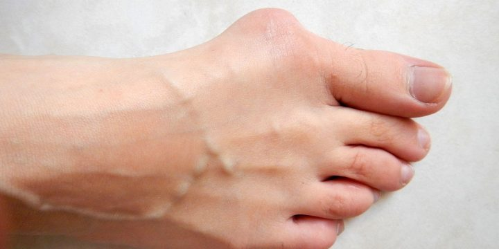 It's Not Too Late to Fix Your Bunions