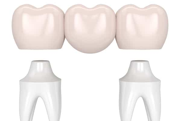 Dental Bridges - Motivo Dental