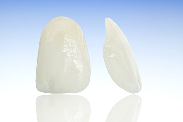 Dental Crowns - Motivo Dental