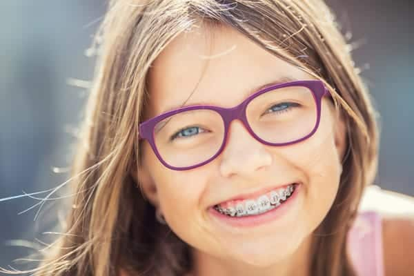 Girl braces-Motivo Dental