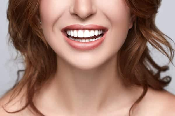 Whitening -Motivo Dental