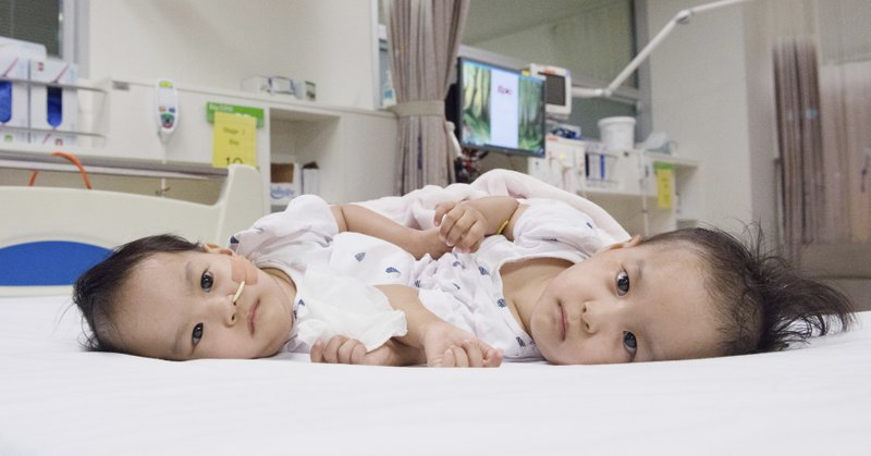 Surgeons in Australia separate conjoined girls from Bhutan