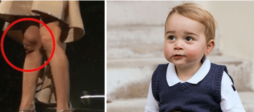 carrie-underwoods-knee-and-prince-george