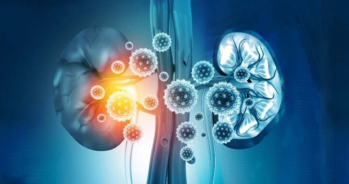 All you need to know about chronic kidney disease and its treatment