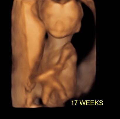 17-weeks-070718