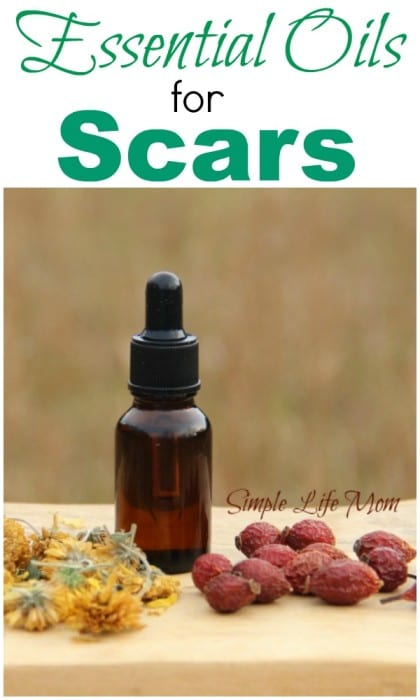 essential oils for scars - natural, organic, method for speeding the healing process