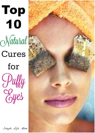 Top 10 Cures for Puffy Eyes from Simple Life Mom