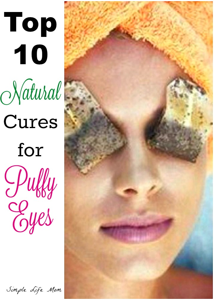 Top 10 Cures for Puffy Eyes